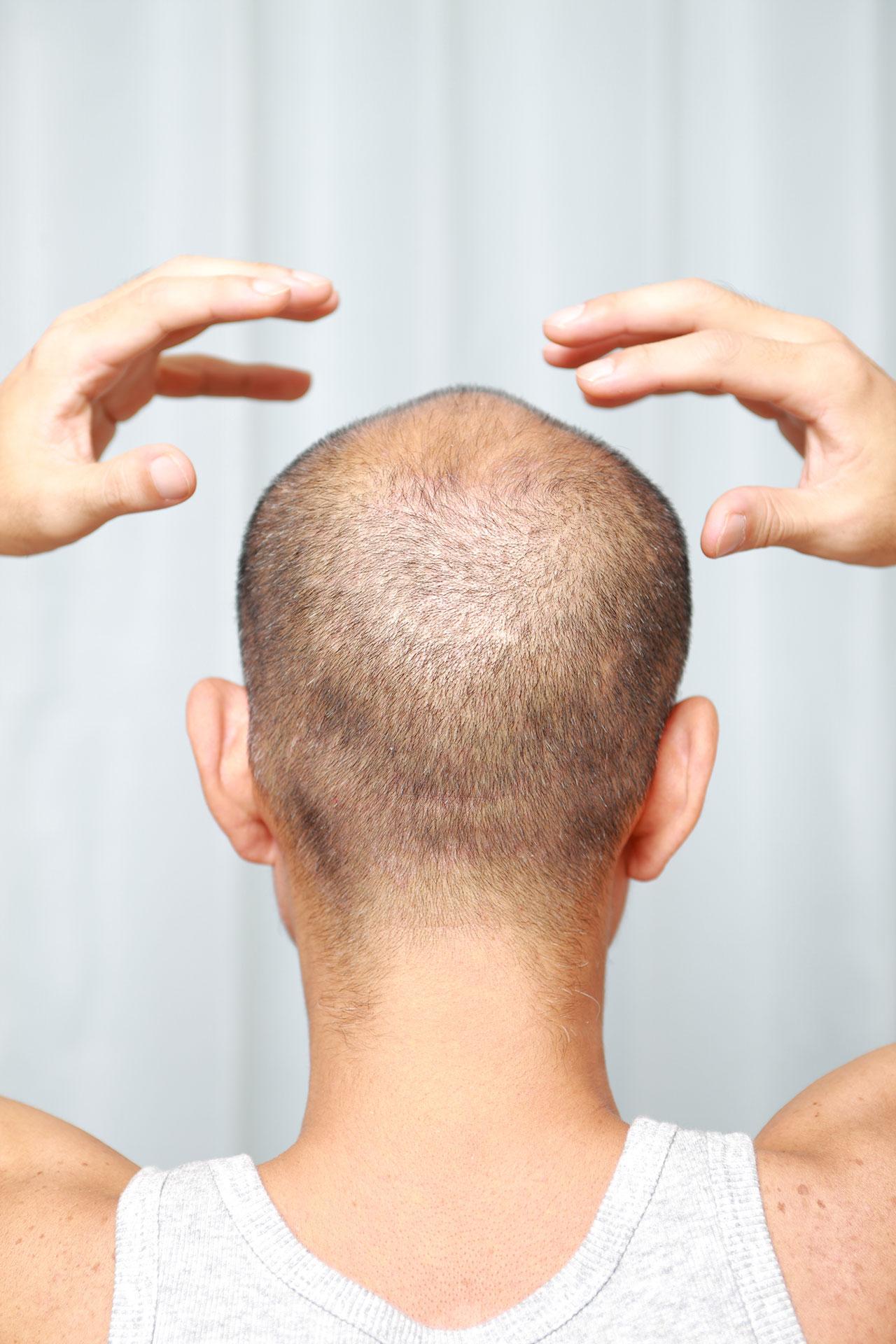 なぜ人は髪の毛が抜けて薄毛になるのか?
