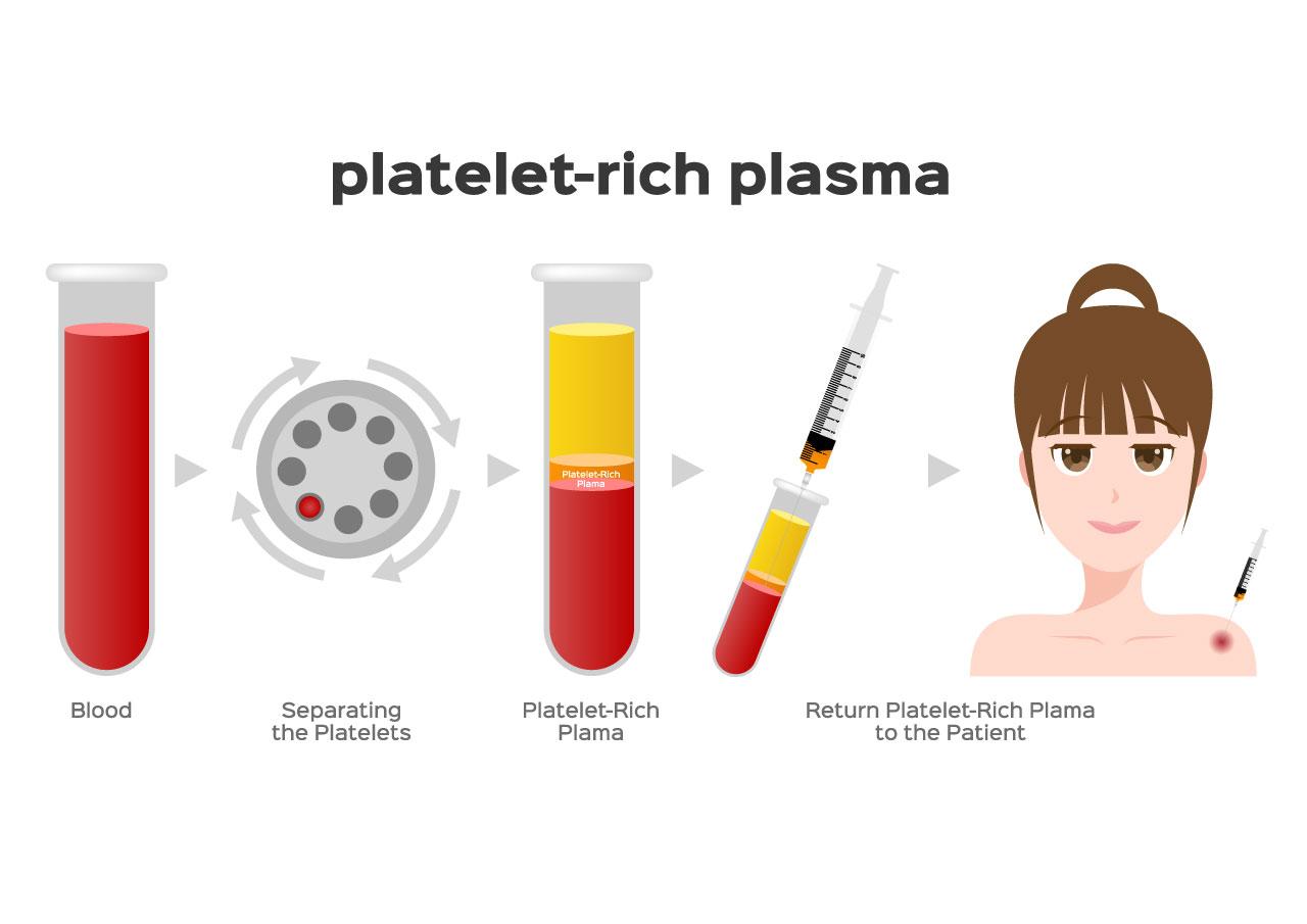 PRP(多血小板血漿)療法って、どんな治療?