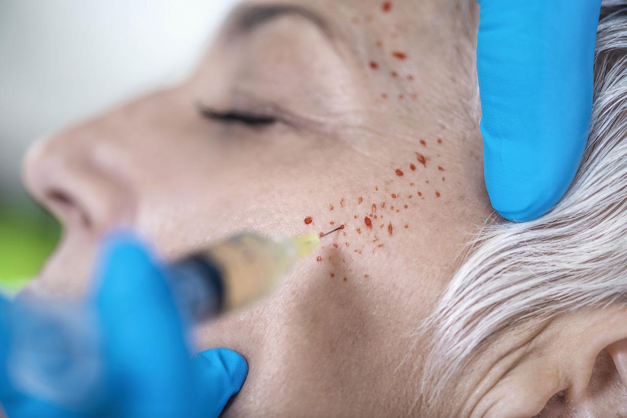 皮膚(お肌)の老化を再生医療で治すには