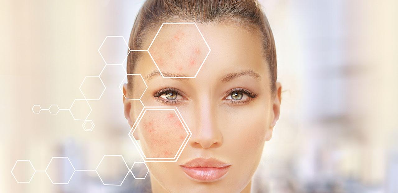 皮膚(お肌)はなぜ老化するの?シミ、しわ、たるみの原因