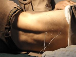 鍼灸治療 背部
